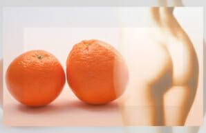 Was ist eigentlich Cellulite und wie entsteht sie?