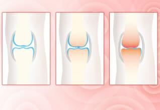 Was ist Arthrose?
